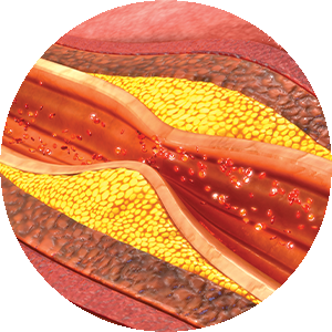 Coronary Calcium Score - Artery Disease